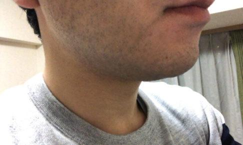 髭脱毛前の私の髭