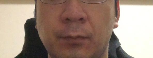 メディリフト3ヶ月後の顔